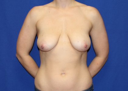 Bellesoma Breast Lift Before & After Patient #5333
