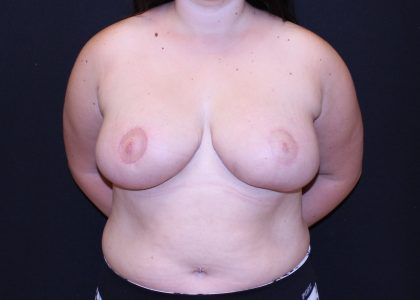 Bellesoma Breast Reduction Before & After Patient #5253