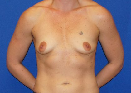 Breast Augmentation Before & After Patient #5556