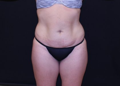 Tummy Tuck Before & After Patient #5713