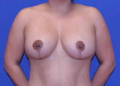 Breast Lift & Implant Before & After Patient #5654