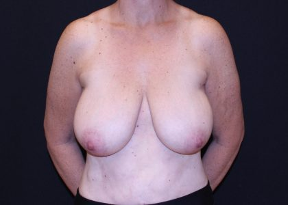 Bellesoma Breast Reduction Before & After Patient #5442