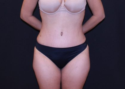 Tummy Tuck Before & After Patient #5700