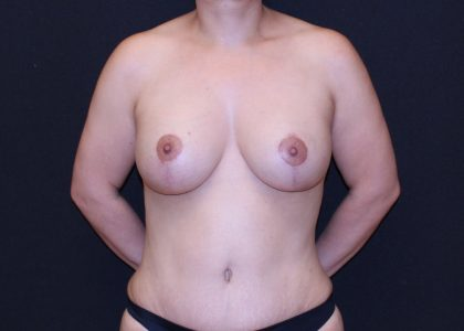 Breast Lift & Implant Before & After Patient #5665