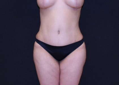 Tummy Tuck Before & After Patient #5726