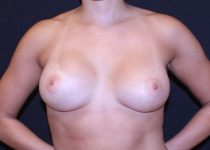 Breast Augmentation Before & After Patient #5578