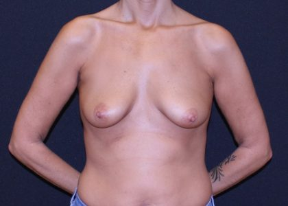 Breast Lift & Implant Before & After Patient #5676