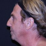 Facelift Before & After Patient #5687