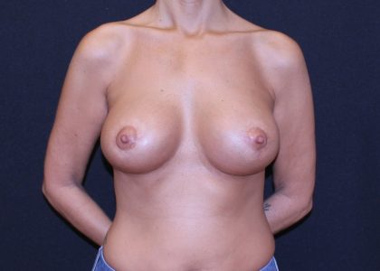 Periareolar Breast Lift Before & After Patient #5676