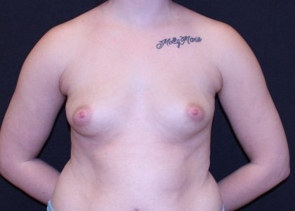 Breast Augmentation Before & After Patient #5567