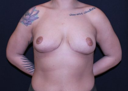 Bellesoma Breast Reduction Before & After Patient #5930