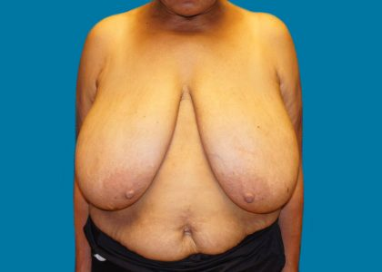 Breast Reduction Before & After Patient #6111
