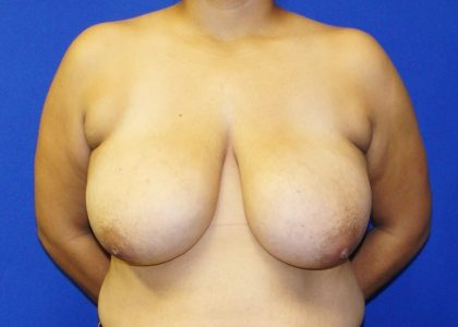 Breast Reduction Before & After Patient #6104