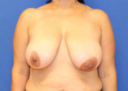 Breast Reduction Before & After Patient #6067