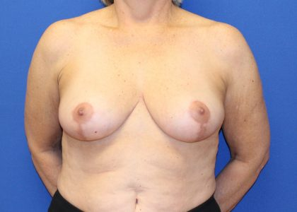 Breast Reduction Before & After Patient #6078