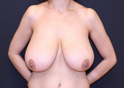 Breast Reduction Before & After Patient #6093