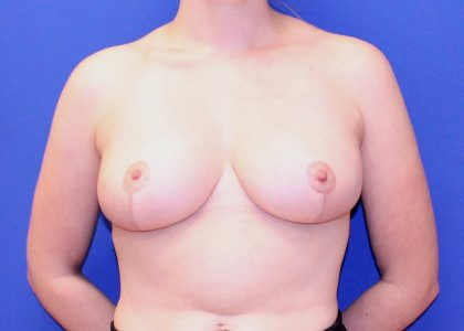 Breast Reduction Before & After Patient #6085