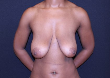 Bellesoma Breast Reduction Before & After Patient #6209