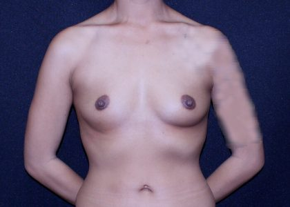 Breast Augmentation Before & After Patient #6331