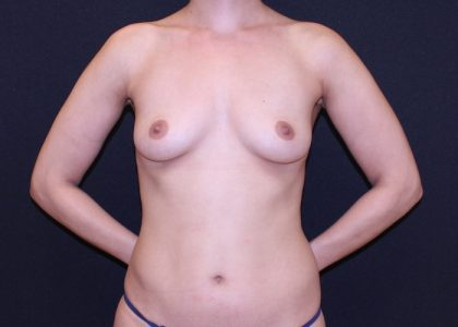 Breast Augmentation Before & After Patient #6362