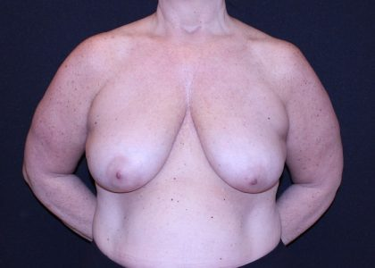 Bellesoma Breast Reduction Before & After Patient #6320