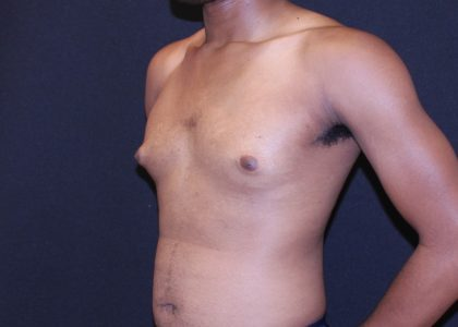 Gynecomastia Before & After Patient #6456