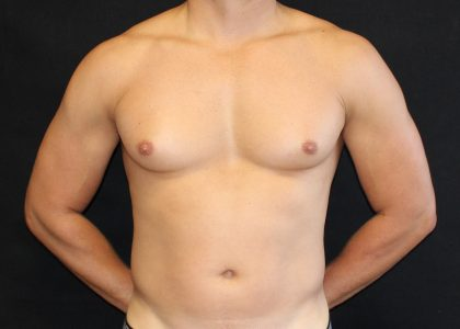 Gynecomastia Before & After Patient #6490
