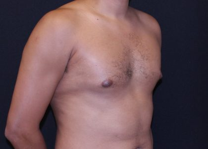 Gynecomastia Before & After Patient #6468