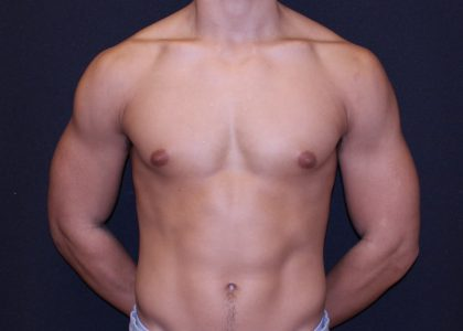 Gynecomastia Before & After Patient #6501