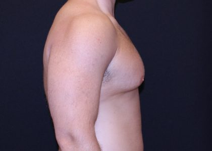 Gynecomastia Before & After Patient #6545