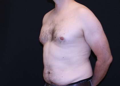 Gynecomastia Before & After Patient #6479