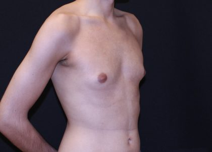 Gynecomastia Before & After Patient #6523
