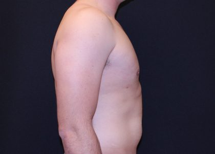 Gynecomastia Before & After Patient #6445