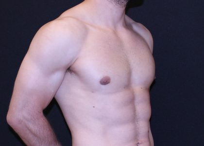 Gynecomastia Before & After Patient #6512