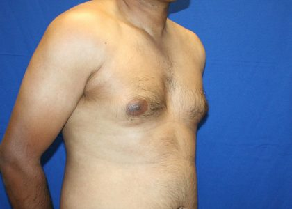 Gynecomastia Before & After Patient #6534