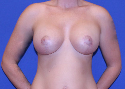 Breast Lift & Implant Before & After Patient #6728