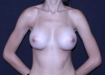 Breast Augmentation Before & After Patient #6690