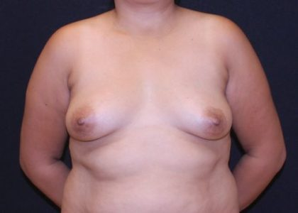 Breast Augmentation Before & After Patient #6701