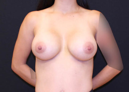 Breast Augmentation Before & After Patient #6712