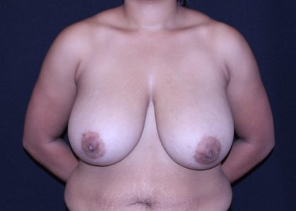 Bellesoma Breast Reduction Before & After Patient #6886