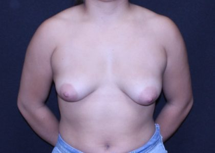 Periareolar Breast Lift Before & After Patient #6969