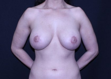 Periareolar Breast Lift Before & After Patient #6991