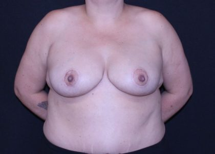 Bellesoma Breast Reduction Before & After Patient #7281