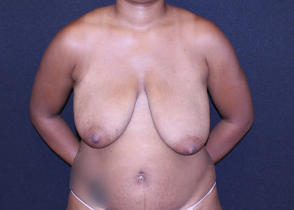 Bellesoma Breast Reduction Before & After Patient #7303