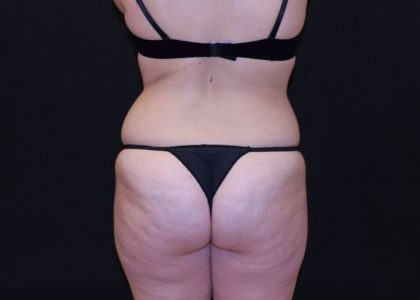 Buttock Enhancement Before & After Patient #7553