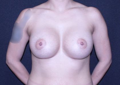 Breast Augmentation Before & After Patient #7518