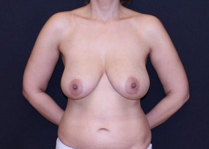 Bellesoma Breast Reduction Before & After Patient #7771
